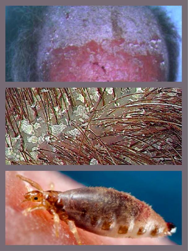 Le psoriasis, les pellicules ou les poux. Ils ont peut-être enfilé cette casquette avant vous.